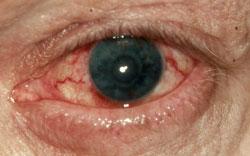 rött öga huvudvärk